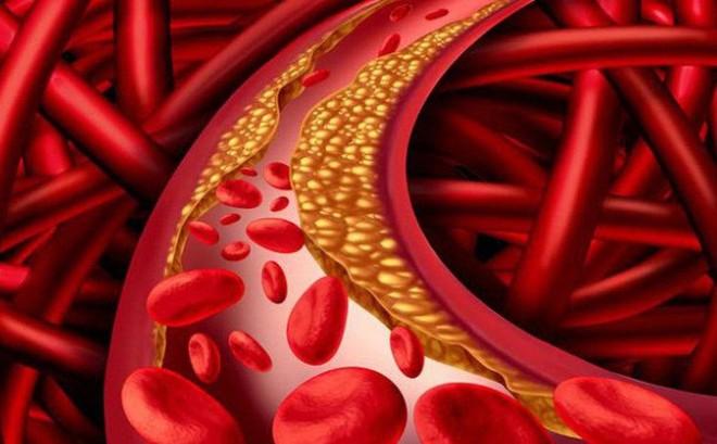 Mỡ máu - tình dục: Tỷ lệ nghịch