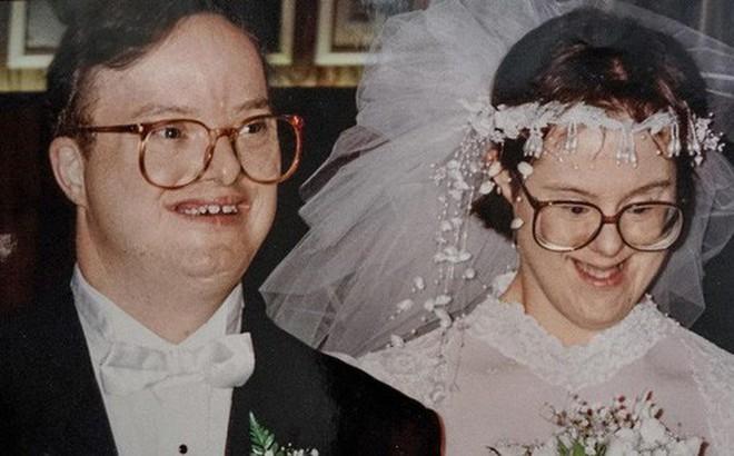 Chuyện tình cảm động của cặp đôi mắc hội chứng Down: Người tật nguyền cũng có hạnh phúc trọn vẹn, bất chấp sự phản đối của xã hội