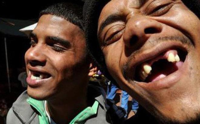 Nụ cười thiếu những chiếc răng cửa: 'Khoảng cách đam mê' hay còn là mốt thời trang kì quặc ở Nam Phi