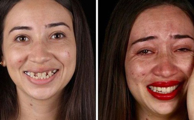 Nha sĩ Brazil được tôn làm người hùng sau khi làm răng miễn phí, đem lại nụ cười cho hàng trăm người dân nghèo khổ