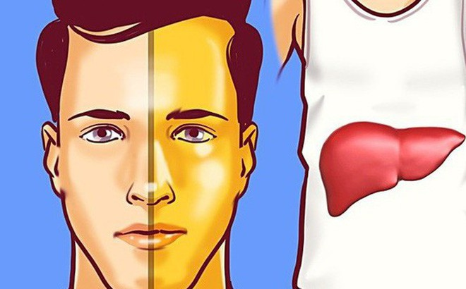 Nếu 4 dấu hiệu này xuất hiện trên mặt thì gan đã bị tổn thương trầm trọng, đừng chần chừ mà hãy đi khám gấp