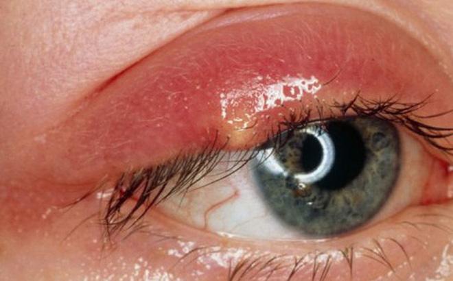 Mụn nổi ở mí mắt trên: Dấu hiệu và cách xử lý để bạn bớt cảm thấy khó chịu