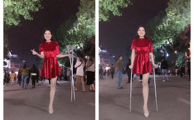 Cô gái mất 1 chân xuất hiện trên phố đi bộ Hà Nội gây xôn xao: Sau 4 ngày tỉnh lại đã thành người khác