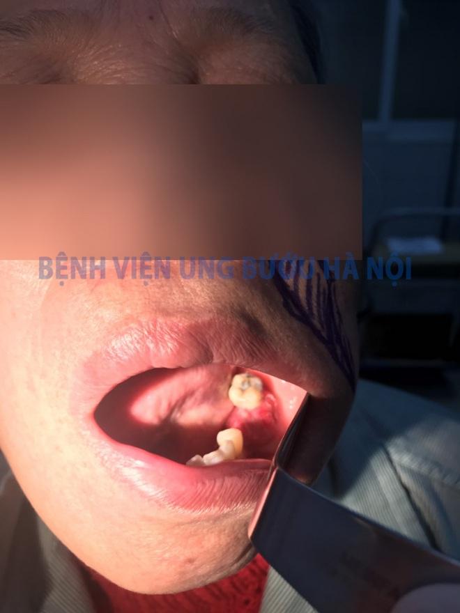 Tưởng chỉ viêm họng, sâu răng, đi khám người phụ nữ phát hiện ung thư lợi hàm - Ảnh 1.