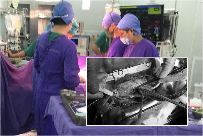 Người phụ nữ vỡ tim, 2 ngày sau đã hồi phục - Ảnh 1.