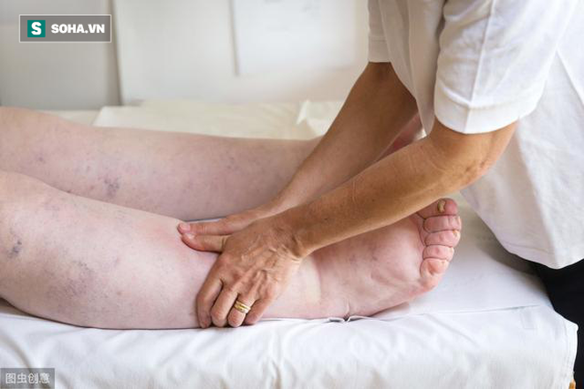 Bệnh thận không tấn công đột ngột, khi có 4 dấu hiệu này ở tay chân là bạn phải đi khám - Ảnh 1.