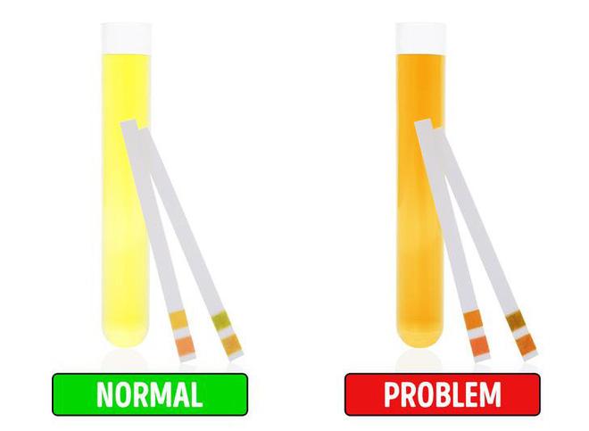 Những dấu hiệu cảnh báo gan bị tổn thương, cần đi khám bác sĩ ngay - Ảnh 7.