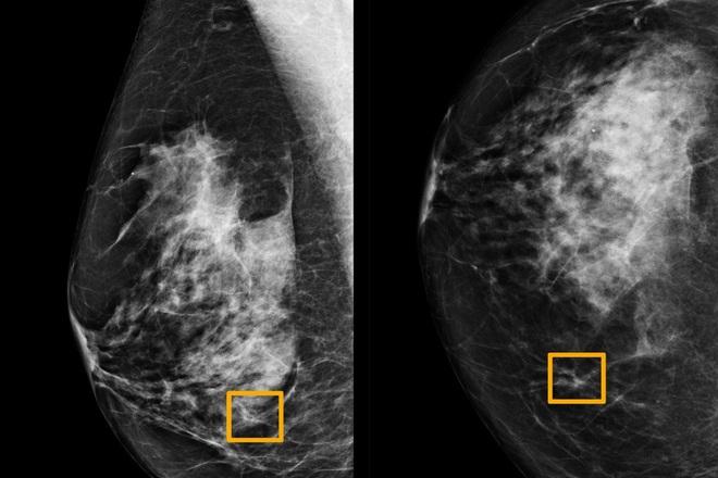 Vì sao trí tuệ nhân tạo của Google có thể chẩn đoán ung thư vú chính xác hơn nhiều so với các bác sĩ giỏi nhất? - Ảnh 2.