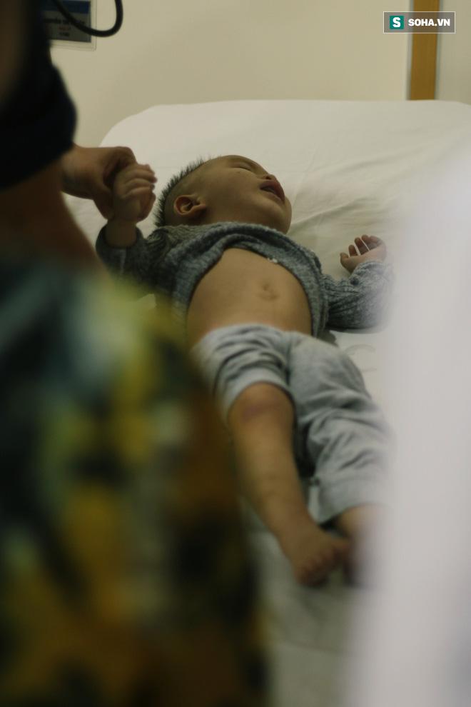 TẾT MUỘN Ở SÀI GÒN: Vui nhất là thấy giường bệnh ít đi một người, phòng cấp cứu vắng đi một chút - Ảnh 4.