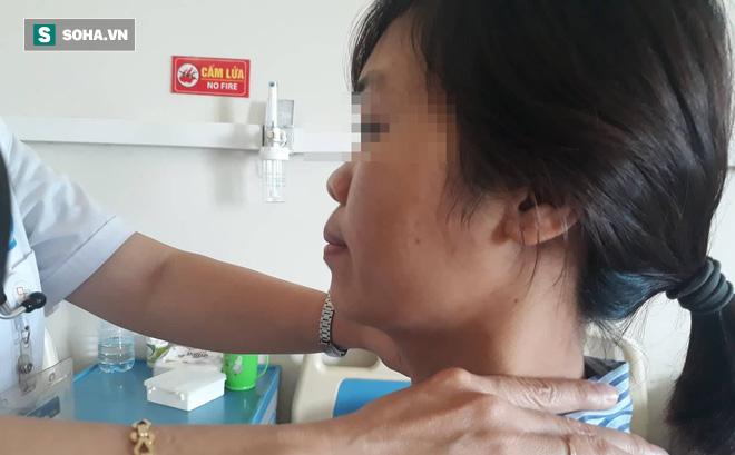 Hiếm gặp: Gia đình 5 chị em gái cùng mắc một căn bệnh, 2 người đã chuyển thành ung thư