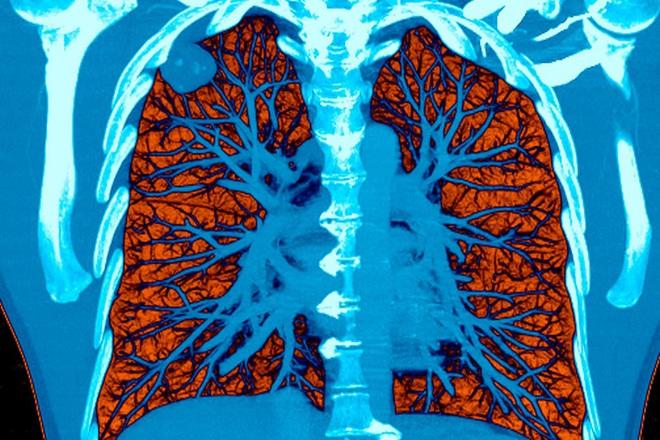 Bị ung thư phổi đừng dễ dàng buông tay: Hãy bắt đầu với việc ăn uống để kéo dài sự sống - Ảnh 1.