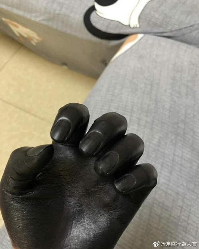 Đôi tay đen phát sợ của người đàn ông, lý do đằng sau khiến ai cũng ngao ngán - Ảnh 2.