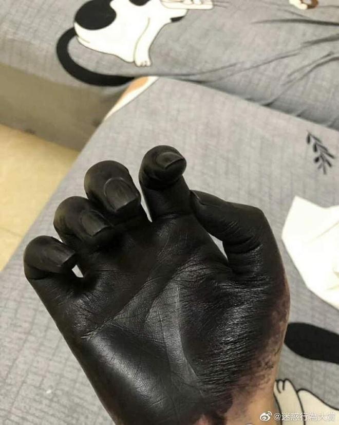 Đôi tay đen phát sợ của người đàn ông, lý do đằng sau khiến ai cũng ngao ngán - Ảnh 3.