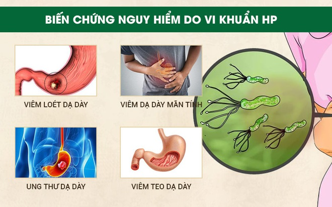 Phòng bệnh ung thư dạ dày: Khuyến cáo từ chuyên gia Bệnh viện K - Ảnh 2.