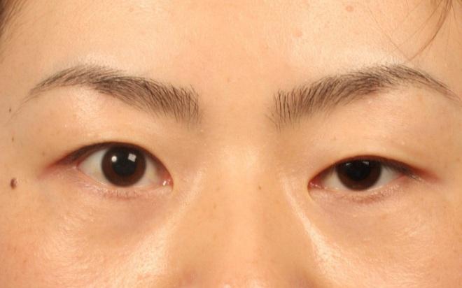 Chữa sụp mí mắt bằng Đông y: Phương pháp an toàn và hiệu quả