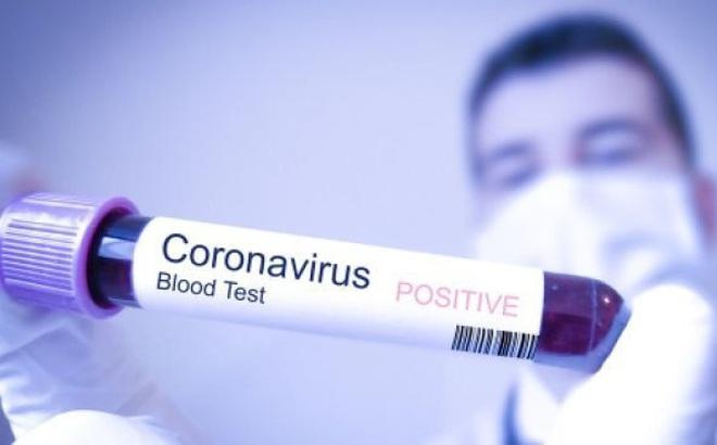 Bệnh nhân nhiễm Covid thứ 33 đã tham quan nhiều điểm du lịch đông người
