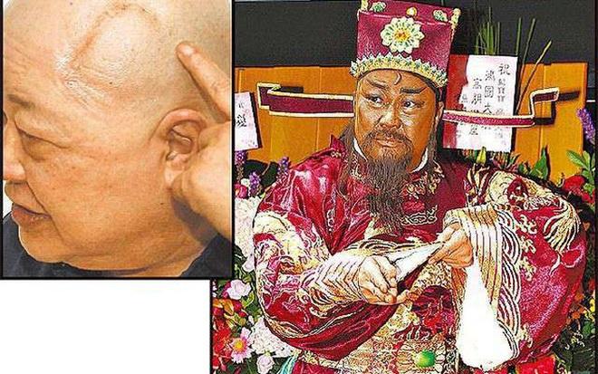 Sau 3 lần suýt chết, phải mổ khối u não 10 cm, sức khỏe của Bao Thanh Thiên hiện ra sao? - Ảnh 6.
