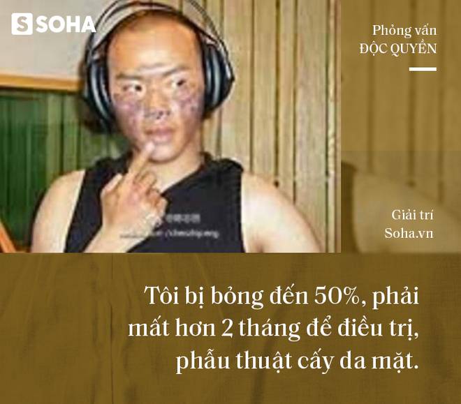 Phỏng vấn độc quyền: Nhĩ Thái phim Hoàn Châu Cách Cách trải lòng về cú sốc khiến mặt bị bỏng 50% - Ảnh 6.