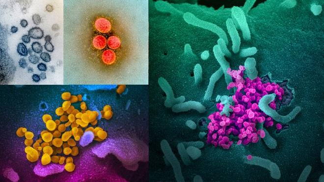 Virus SARS-CoV-2 có màu gì? - Ảnh 6.