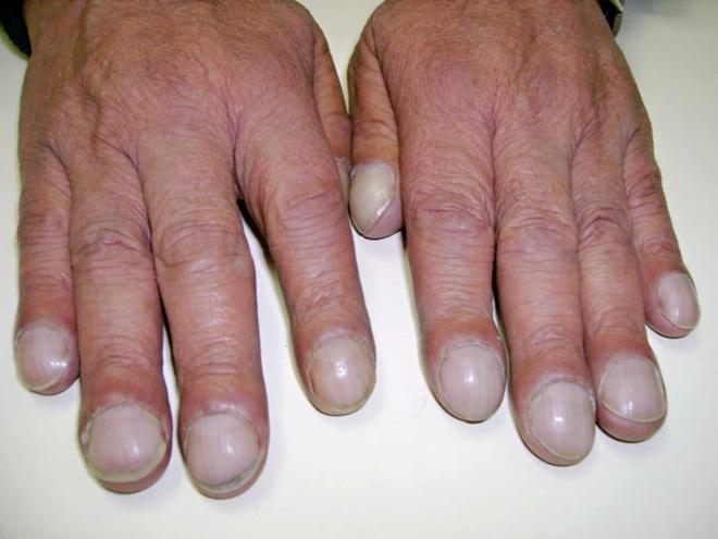 GS Đông y tiết lộ: Cách xem móng tay – tấm gương phản chiếu nội tạng bị bệnh cần đi khám - Ảnh 2.