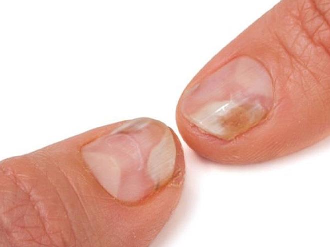 GS Đông y tiết lộ: Cách xem móng tay – tấm gương phản chiếu nội tạng bị bệnh cần đi khám - Ảnh 4.