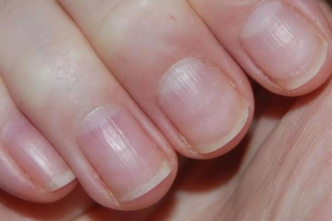 GS Đông y tiết lộ: Cách xem móng tay – tấm gương phản chiếu nội tạng bị bệnh cần đi khám - Ảnh 6.