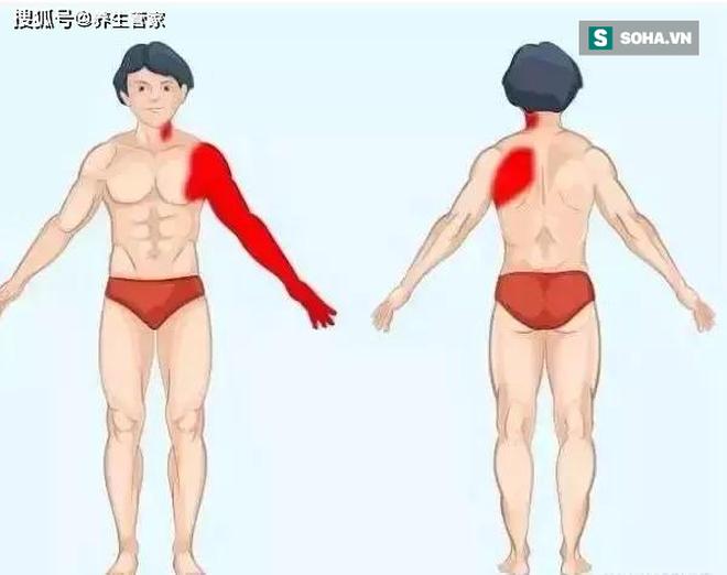 Ghi nhớ 9 bức ảnh giúp bạn nhanh chóng tìm ra nguyên nhân thực sự của cơn đau ở nội tạng - Ảnh 1.