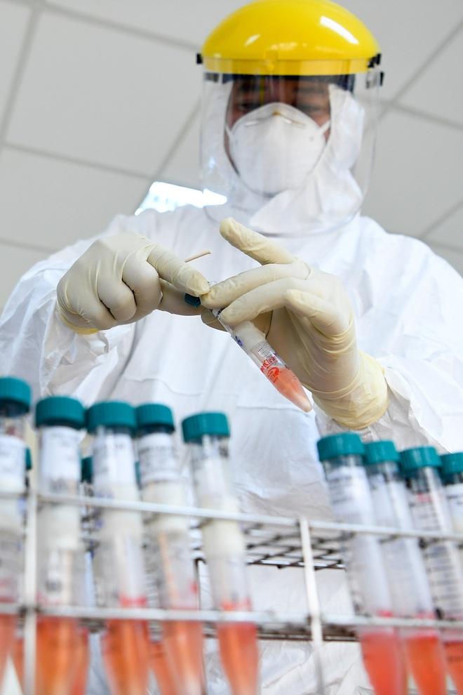 Chuyên gia giải mã bản chất của các xét nghiệm xem ai dương tính với SARS-CoV-2 - Ảnh 1.