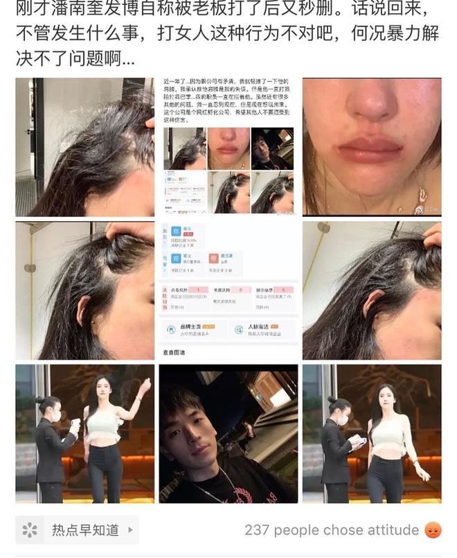 Nữ người mẫu bị bạo hành gây xôn xao: Quá gợi cảm, chi 800.000 USD để giống Angelababy - Ảnh 1.