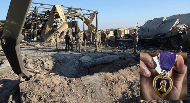 Bị Iran tấn công tên lửa, 110 lính Mỹ sốc nặng, cấp cứu khẩn và được... thưởng huy chương? - Ảnh 1.
