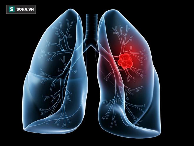 Mỗi năm TQ có 780.000 người mắc ung thư phổi: BS khuyên 3 việc không nên làm trước khi ngủ - Ảnh 1.