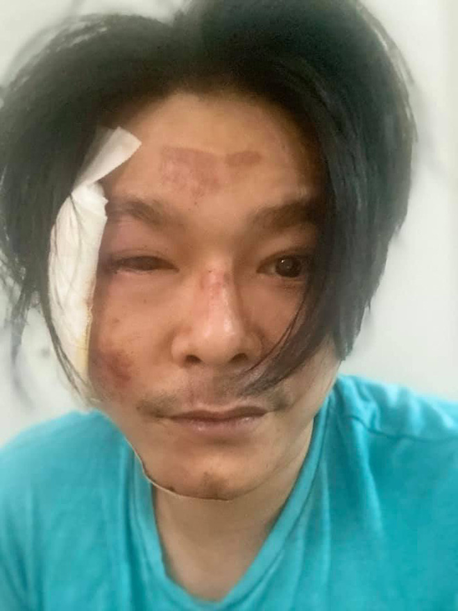 3 lần gặp tai nạn đều có chung một điểm kỳ lạ của nghệ sĩ Linh Tý - Ảnh 2.