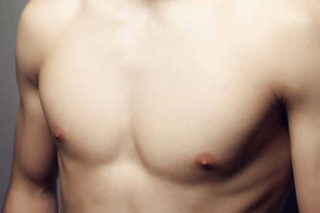8 dấu hiệu đáng ngạc nhiên của ung thư vú ở nam giới - Ảnh 3.