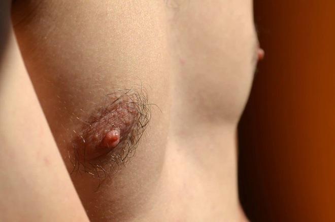 8 dấu hiệu đáng ngạc nhiên của ung thư vú ở nam giới - Ảnh 4.