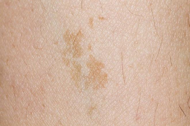 8 dấu hiệu đáng ngạc nhiên của ung thư vú ở nam giới - Ảnh 5.