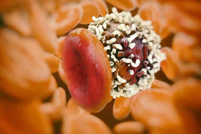 8 dấu hiệu đáng ngạc nhiên của ung thư vú ở nam giới - Ảnh 6.
