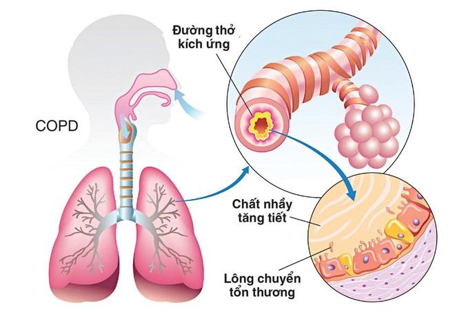 Nếu cơ thể có 2 chỗ lồi và 3 chỗ đen sạm: Bệnh phổi đang điểm danh bạn, hãy đi khám - Ảnh 1.