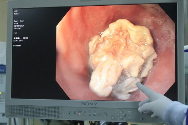 Phát hiện ung thư nhờ miếng thịt ngan: Bác sĩ nhắc khi ăn có dấu hiệu này phải khám ngay - Ảnh 1.