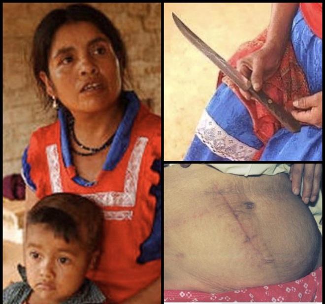 Đau đẻ nhưng không có ai bên cạnh giúp đỡ, bà mẹ đưa ra quyết định phi thường cứu sống con - Ảnh 2.