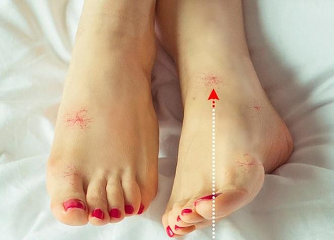 8 dấu hiệu ở chân cảnh báo bạn có thể đang mắc bệnh nguy hiểm - Ảnh 5.