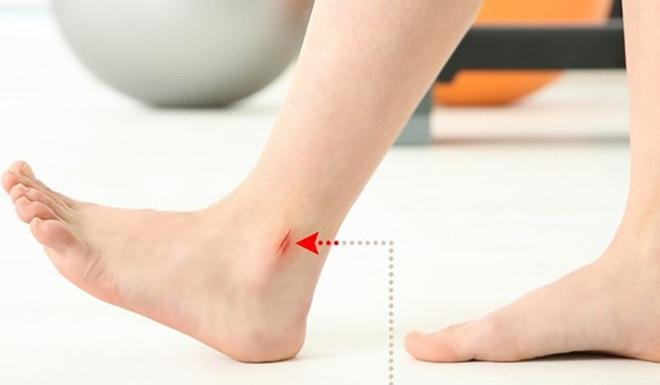 8 dấu hiệu ở chân cảnh báo bạn có thể đang mắc bệnh nguy hiểm - Ảnh 8.