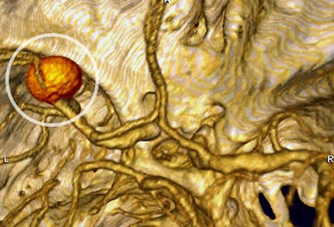 Phình động mạch não - bệnh lý nguy hiểm có thể gây tử vong - Ảnh 1.