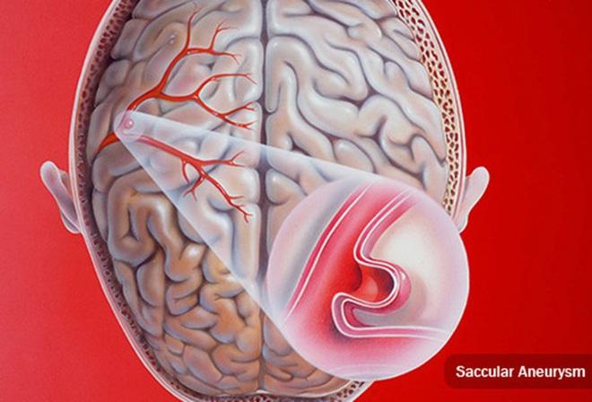 Phình động mạch não - bệnh lý nguy hiểm có thể gây tử vong - Ảnh 2.