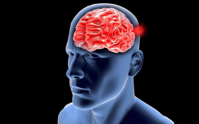 Phình động mạch não - bệnh lý nguy hiểm có thể gây tử vong - Ảnh 3.