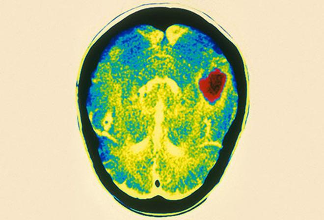 Phình động mạch não - bệnh lý nguy hiểm có thể gây tử vong - Ảnh 5.