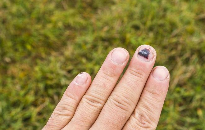 Móng tay nói những điều gì về sức khỏe của bạn? - Ảnh 4.