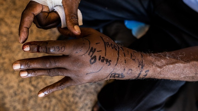 Cuộc khủng hoảng bị lãng quên ở châu Phi: Người sống sót hoặc cụt tay, chân hoặc khuyết tật vĩnh viễn! - Ảnh 4.