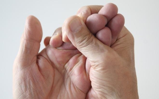 10 triệu chứng tê tay báo hiệu bệnh nguy hiểm - Ảnh 6.