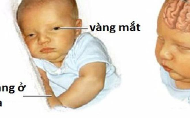 Bé 3 tuổi bại não từ di chứng vàng da sơ sinh: Ranh giới mong manh nhận biết vàng da bệnh lý