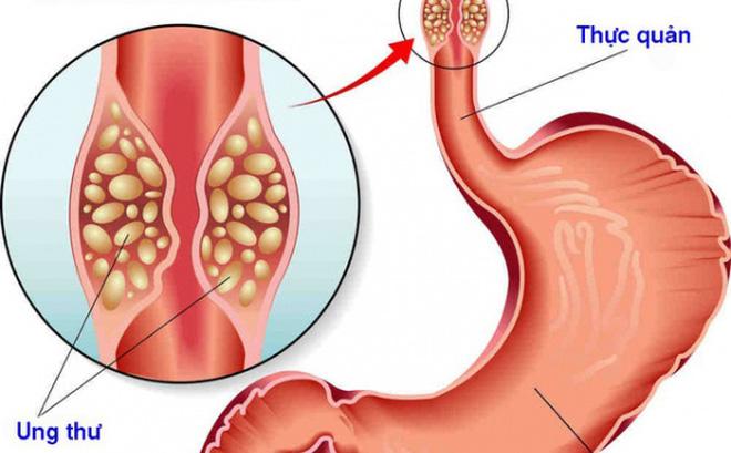 Thực quản tổn thương có thể gây ung thư?